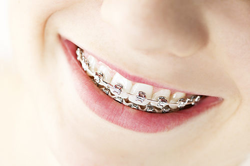 Braces in Glenwood