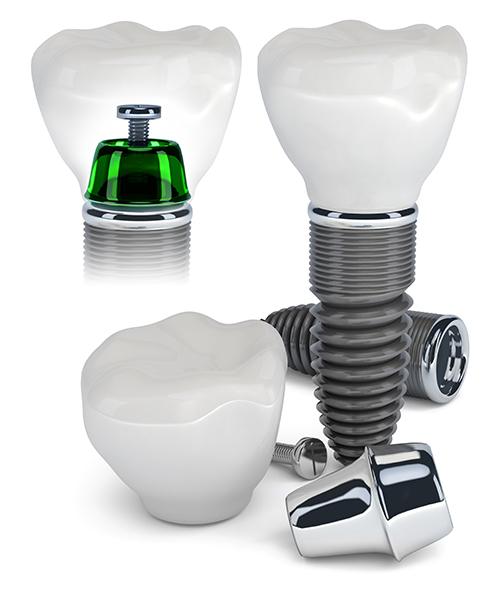 Brooklyn dental implant