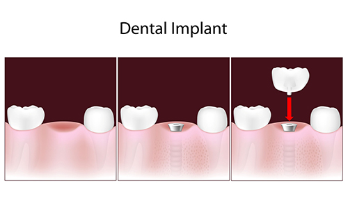Dental Implants in Brooklyn