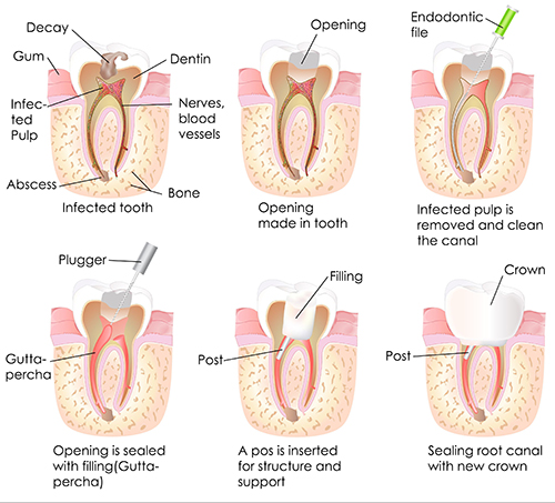 Root Canal in Brooklyn